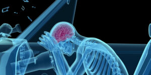 car accident lawyers - brain and spine injuries
